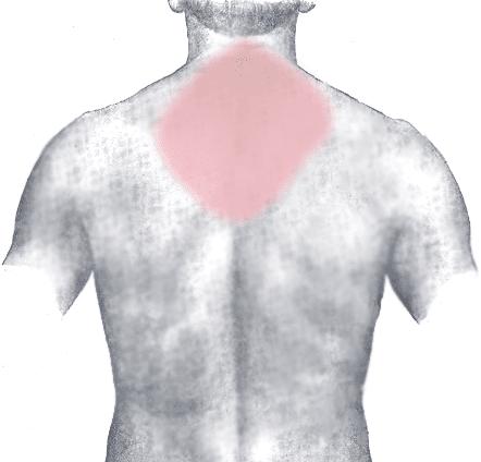 Neck Pain, Shoulder Pain